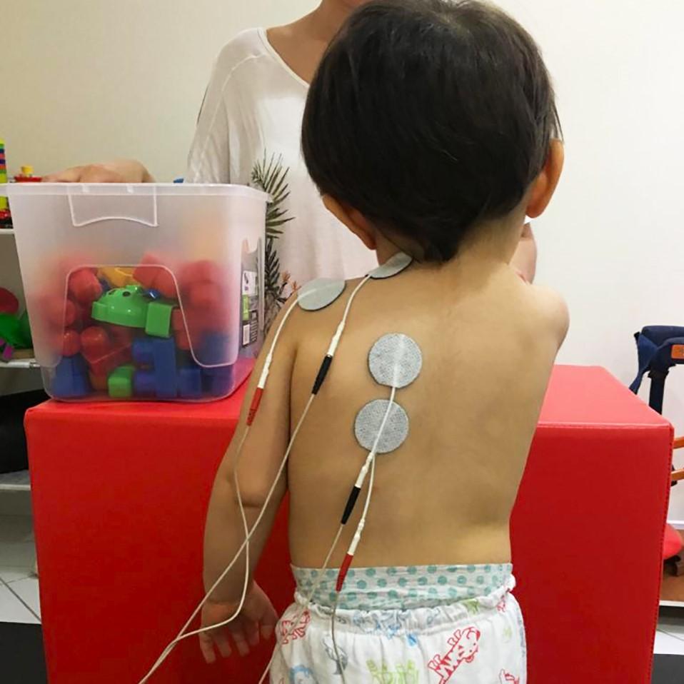 Foto sobre Eletroestimulação Neuromuscular