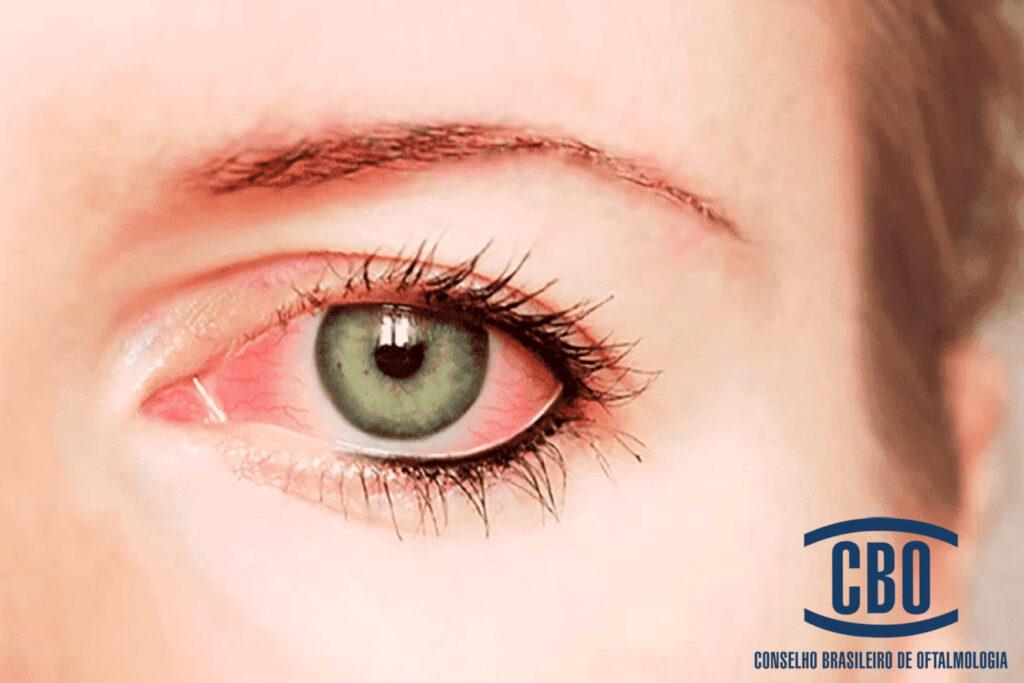 Fotografia de olho ilustra 2/3 das pessoas cegas no mundo são mulheres
