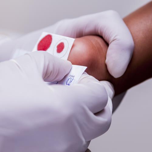 Teste do pezinho no Dia Mundial das Doenças Raras