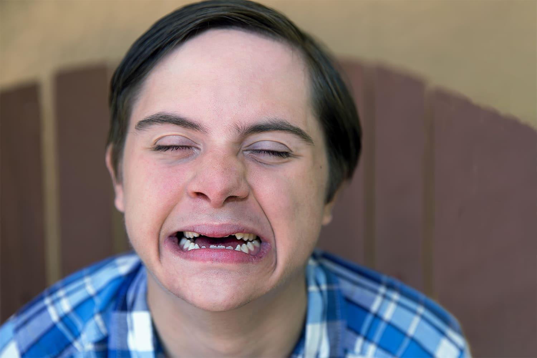 Jovem com síndrome de down sorrindo, para 4 dicas para a saúde bucal na trissomia 21