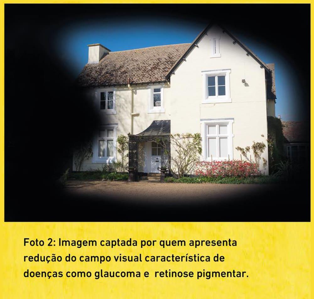 Exemplo 2 de baixa visão, com descrição na legenda.