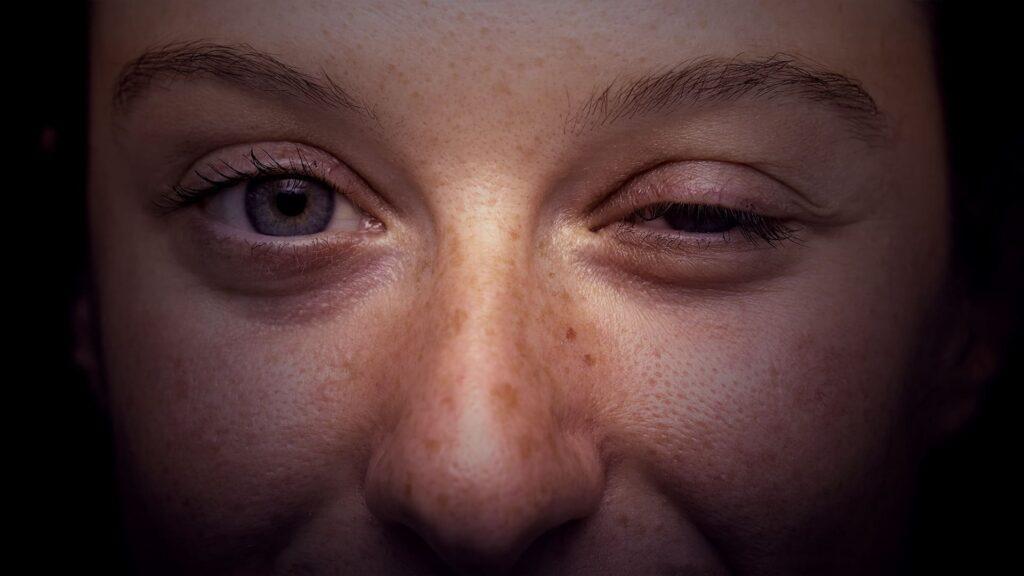Foto do rosto de pessoa com traços de Miastenia Gravis