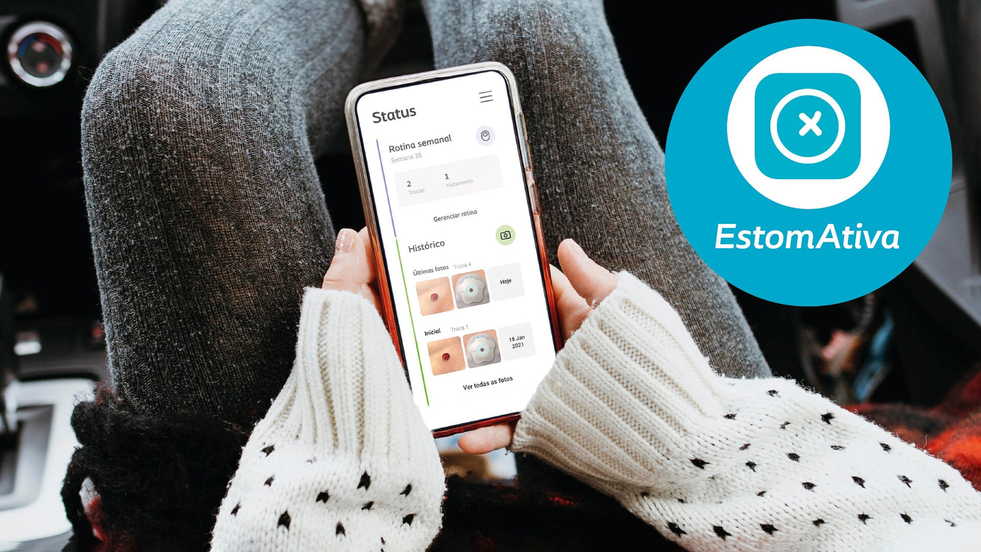 """Imagem de capa ilustrando a matéria """"Coloplast lança app para estomizados"""". Descrição na legenda."""