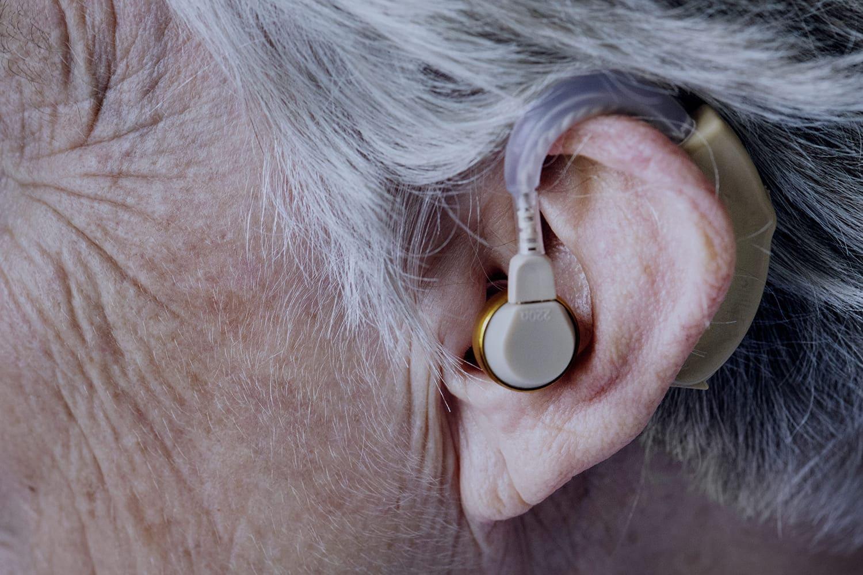 """Fotografia de orelha com aparelho auditivo, ilustrando o texto """"Pessoas surdas podem denunciar em Libras violações de Direitos Humanos no BR""""."""