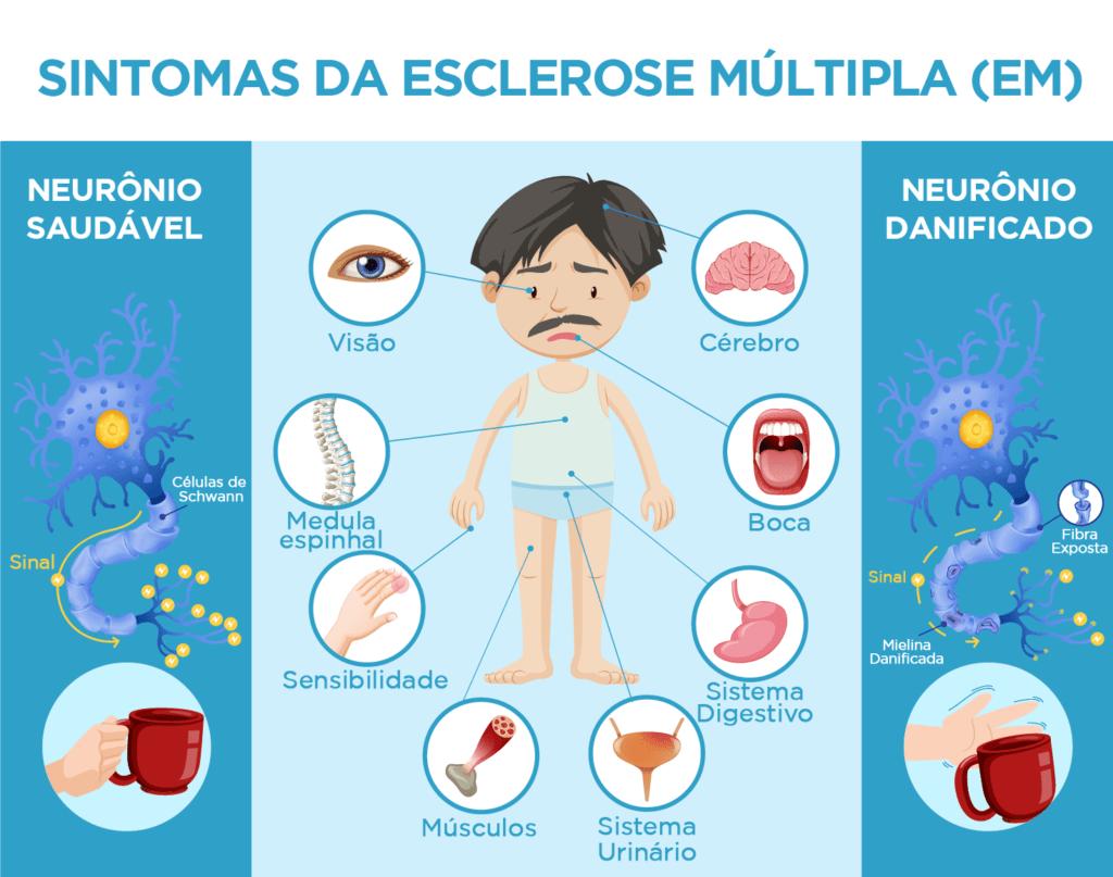 Ilustração sobre os Sintomas da Esclerose Múltipla (EM), com descrição detalhada na legenda, abaixo.