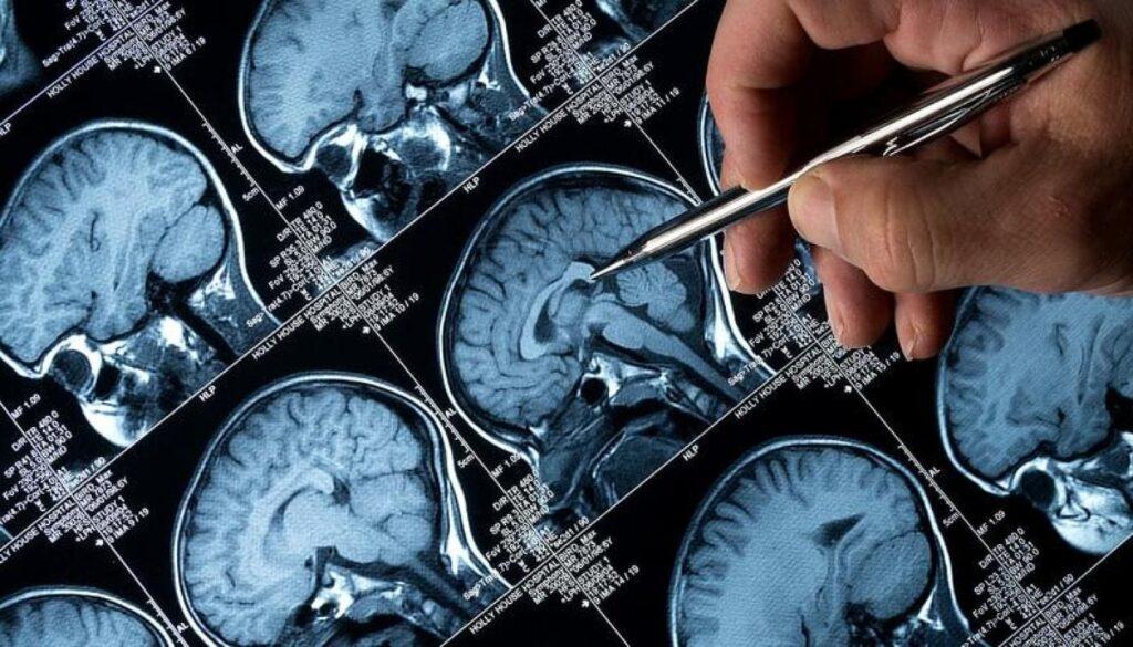 Médico avalia ressonância de cérebro com Alzheimer.